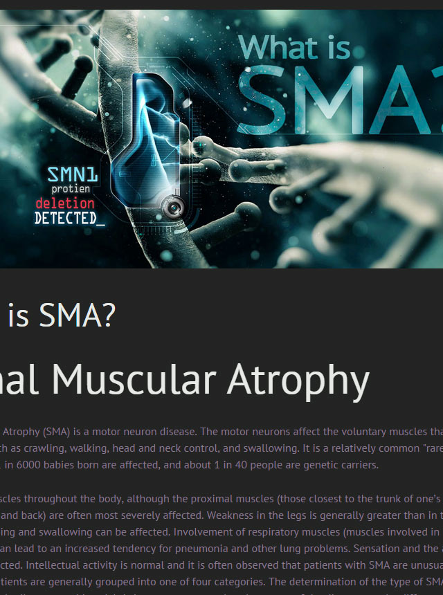 What is SMA?